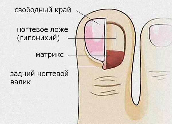 Отхождения ногтей что это такое